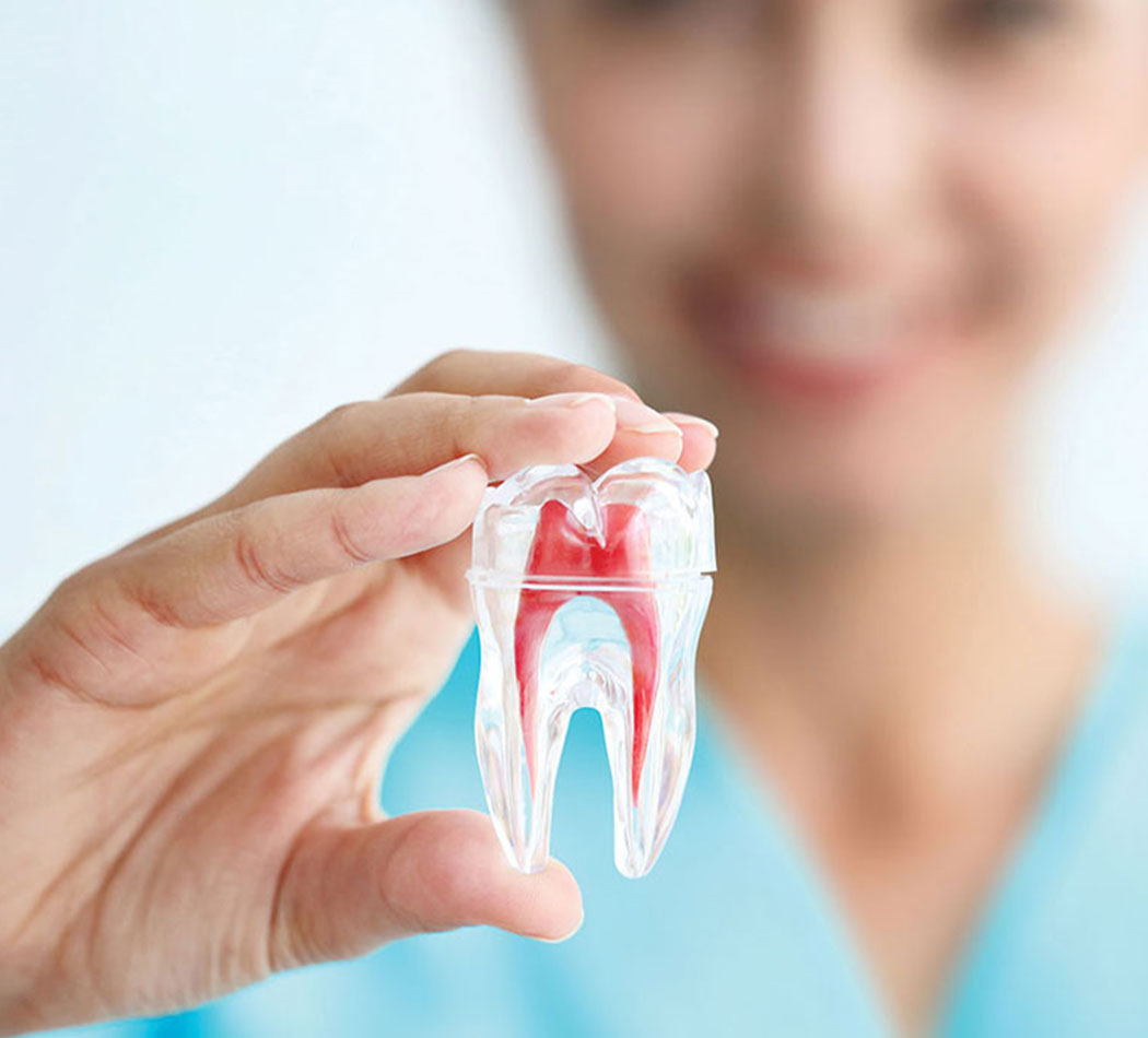 rootcanal treatment dubai
